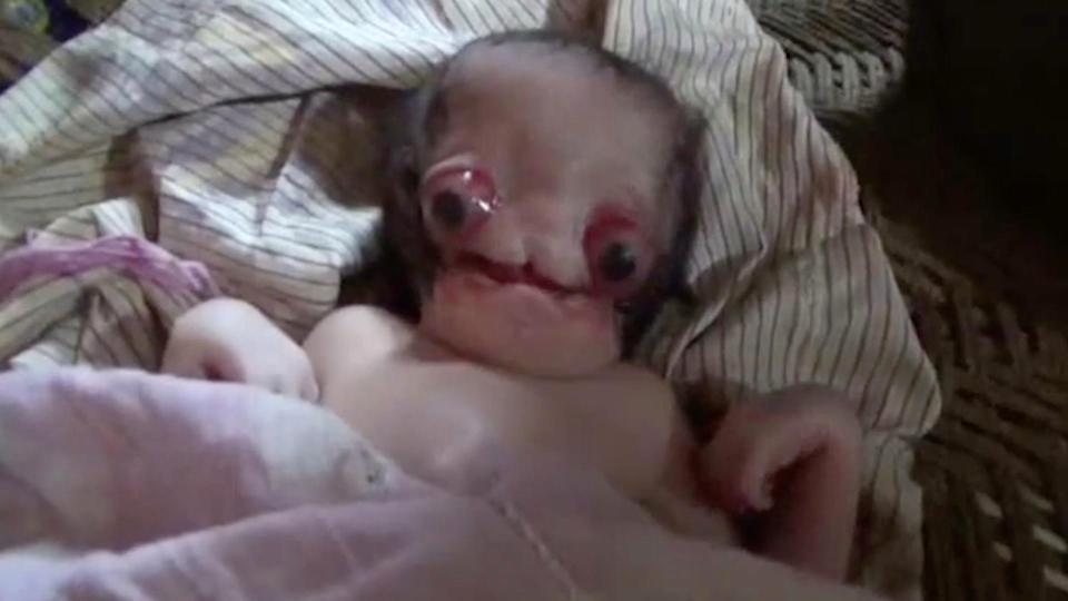Parents of baby Indian boy born with huge bulging eyes say it is 'God's will' - but cruel locals claim he's an ALIEN